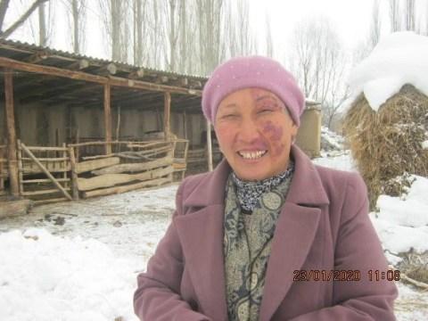 photo of Anar